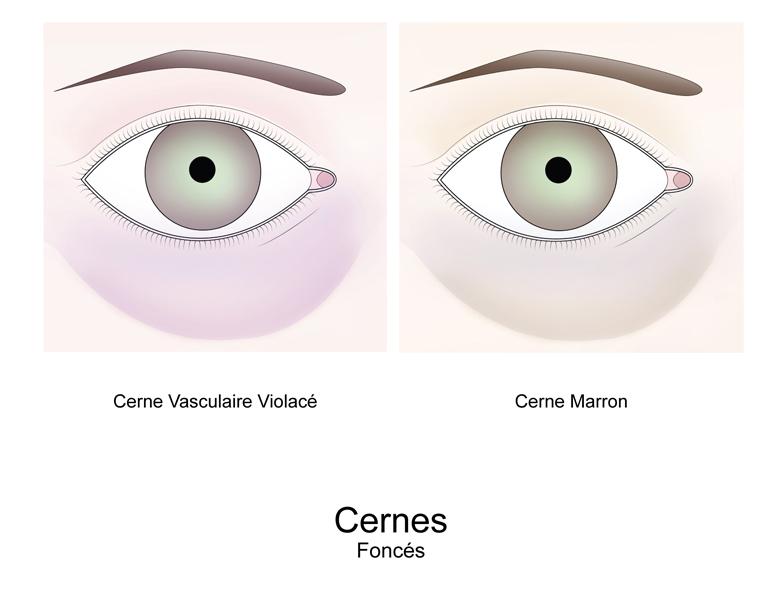 cerne brun sous les yeux