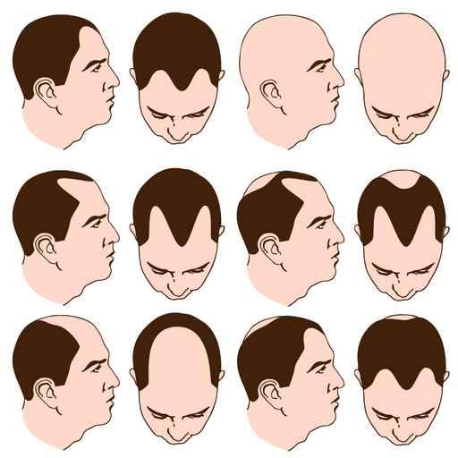 Les greffes de cheveux la m decine esth tique avec le dr for Perte de cheveux homme