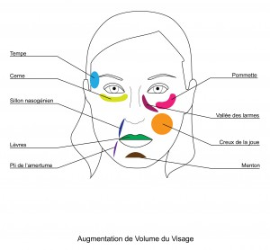 augmentation volume visage