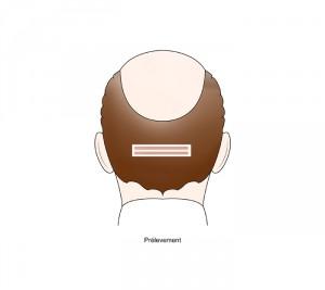 greffe de cheveux bandelettes