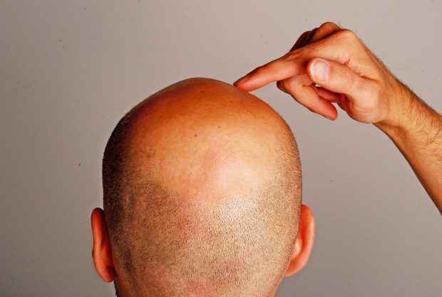 reduction tonsure