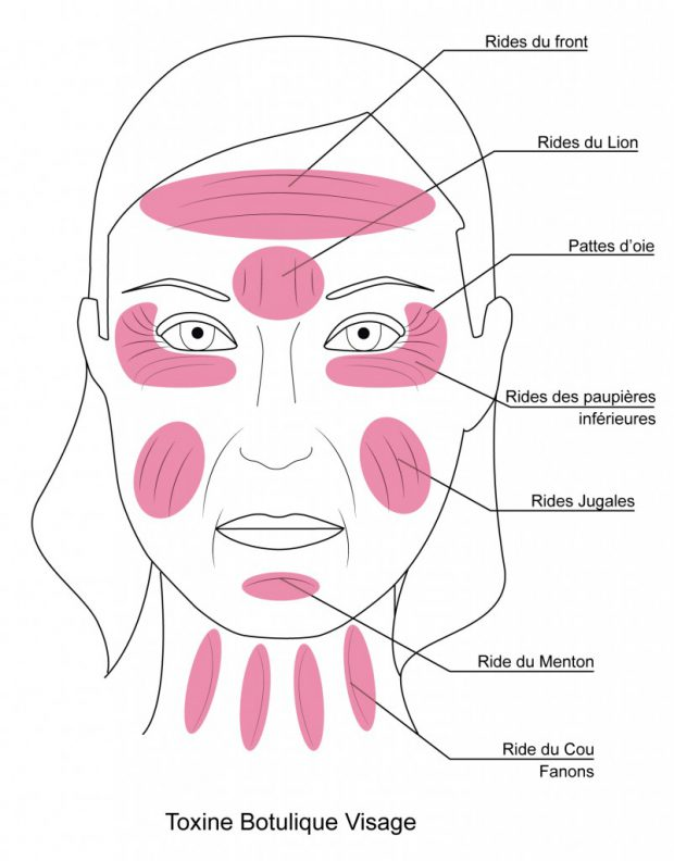 injections visage toxine botulique