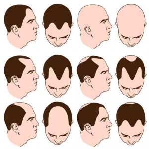 greffe de cheveux ifa