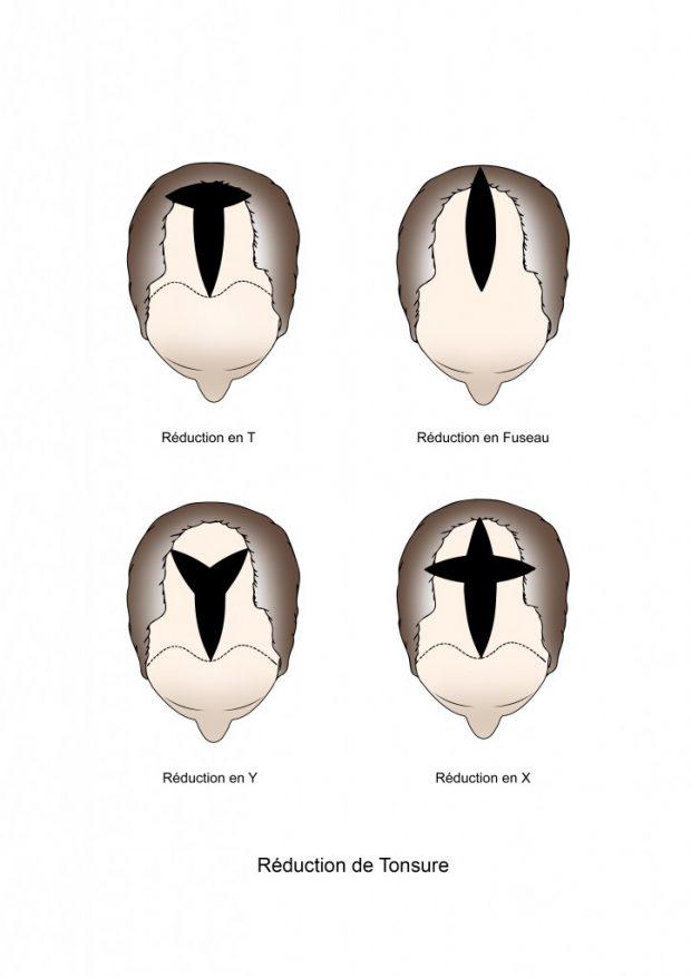 reduction de tonsure
