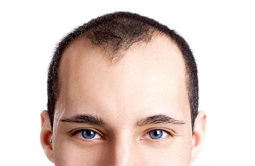 Prenons soin de nos cheveux !
